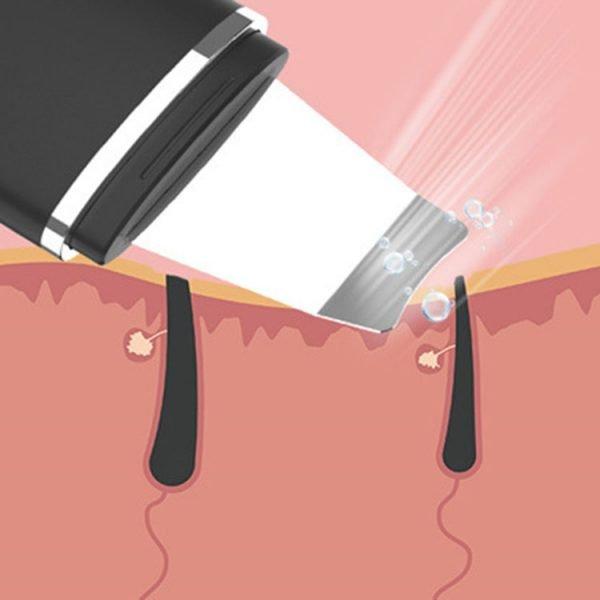 Blackhead Remover Pore Cleaner