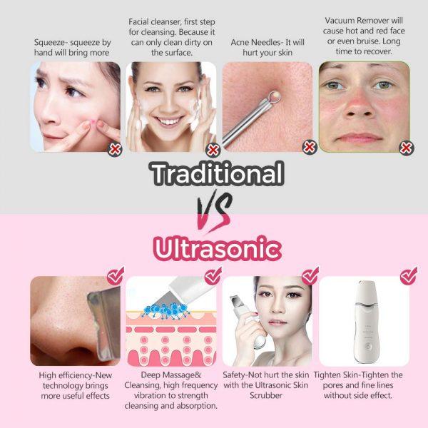 Ultrasonic Skin Spatula VS Tradition