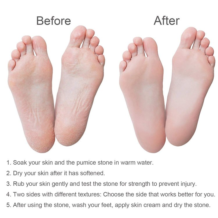 Steps to Use the Foot Pumice Stone for Hard Skin Callus Remover and Scrubber