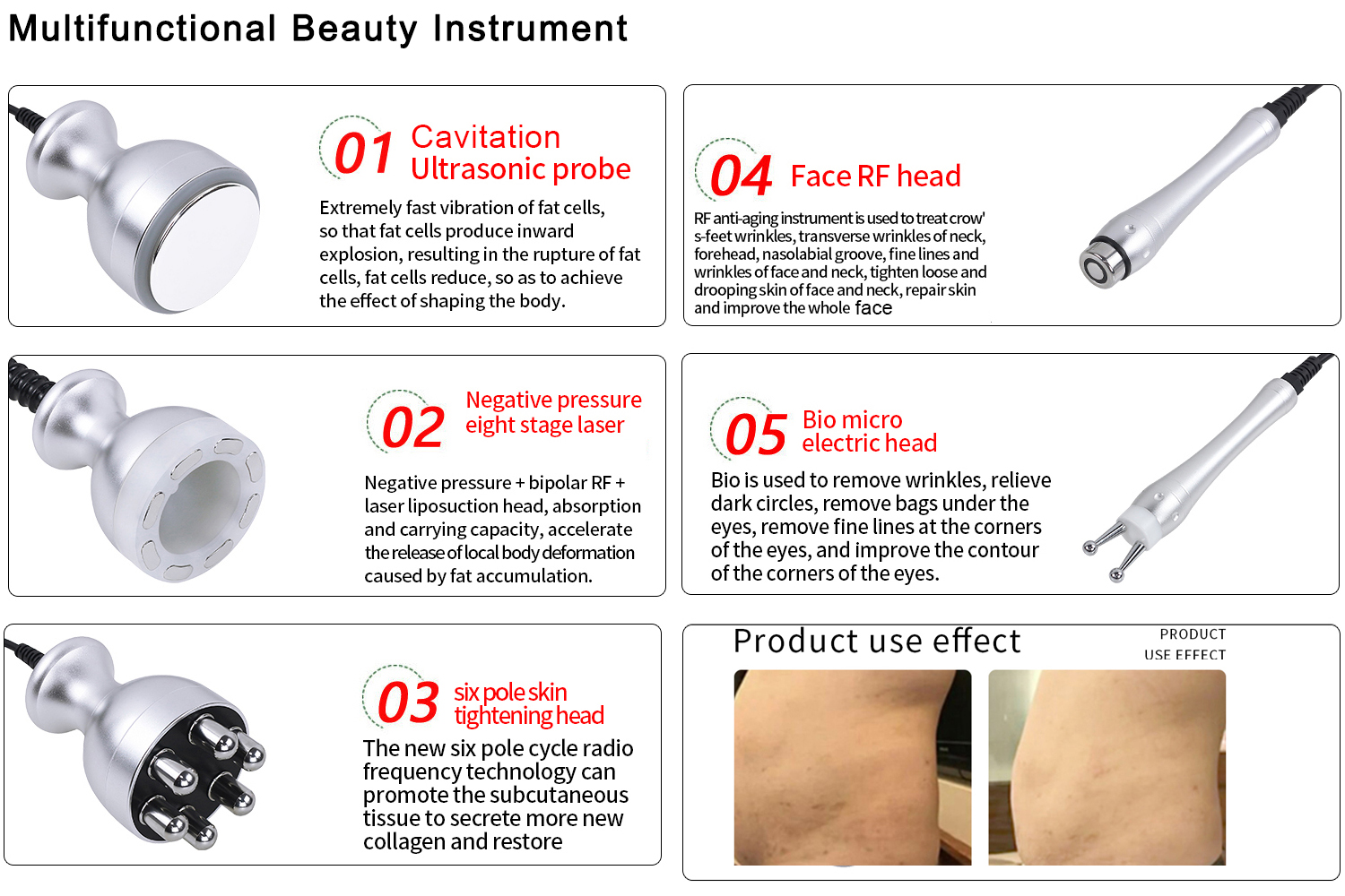 5 in 1 RF Vacuum Facial and Body Slimming Manufacturer Wholesale
